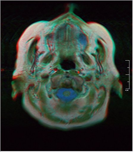 Brain MRI 0198 20.jpg