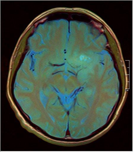 Brain MRI 0211 11.jpg