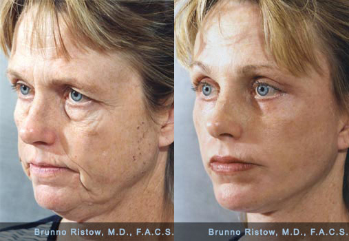 File:Face Lift 01 Dr. Ristow.jpg - Wikimedia Commons