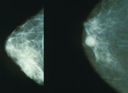 ภาพ:Mammo breast cancer.jpg