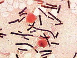 File:Bacillus anthracis.jpg