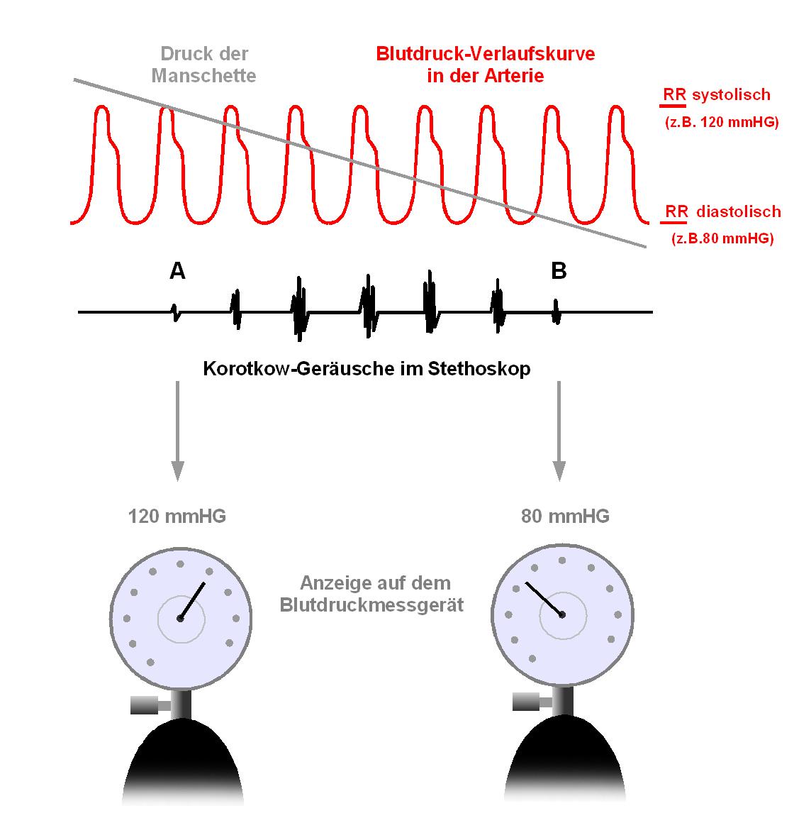 Korotkow-Geräusch - Wikipedia