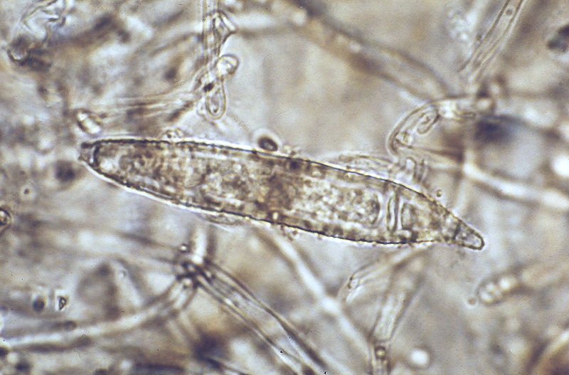 Microsporum Audouinii Wikipedia