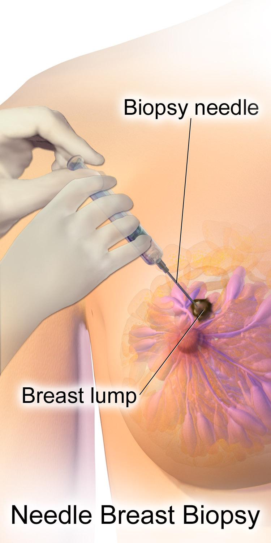 Doctor tushy boobs