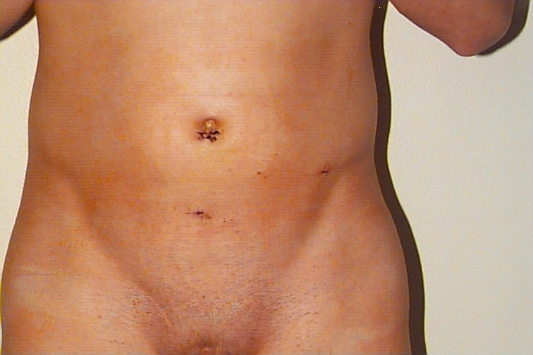 File:Postoperativ View of Abdomen after TEP Operation.jpg ...