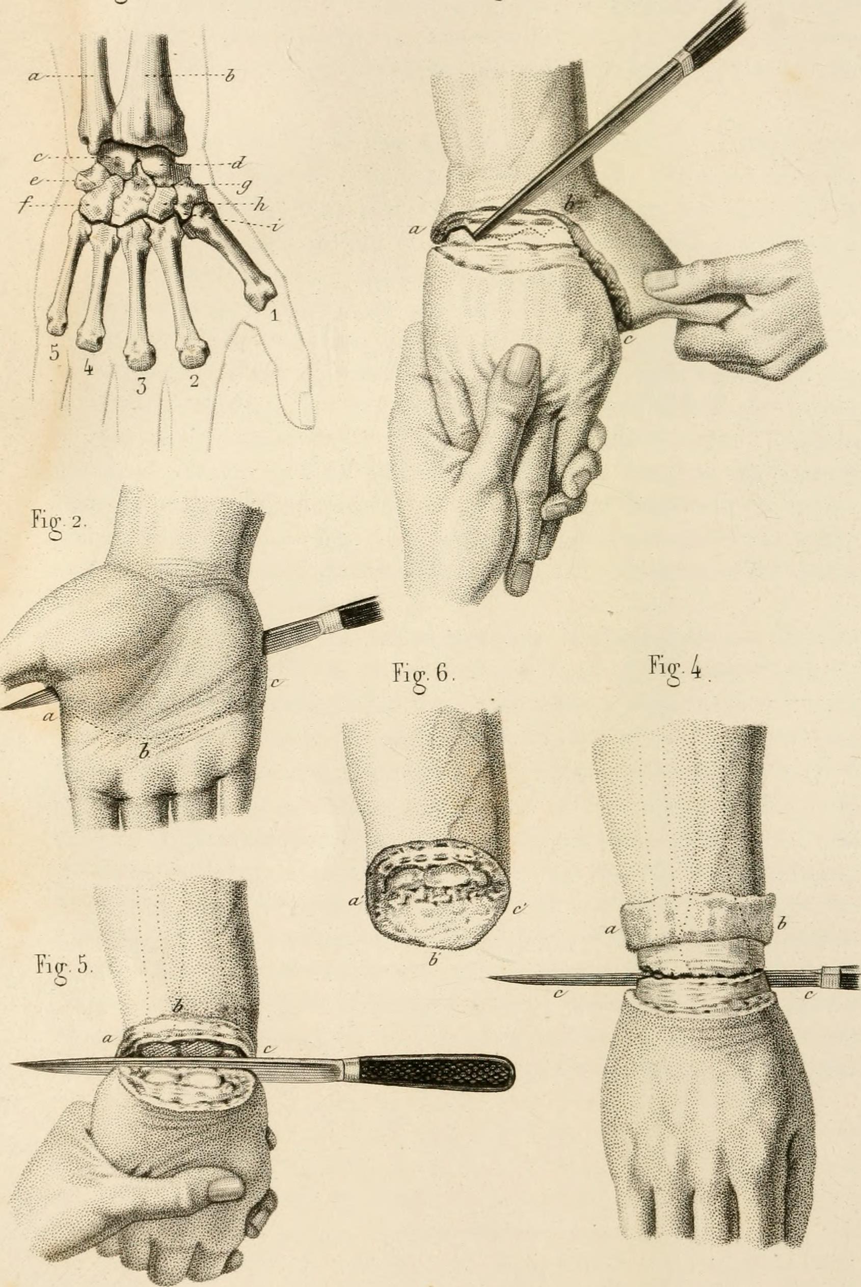 File:Précis iconographique de médecine opératoire et d\'anatomie ...