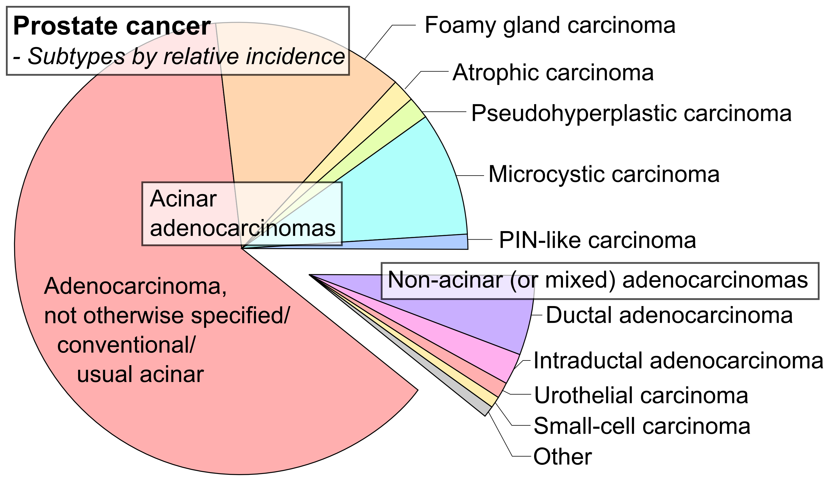 carcinoma acinar prostata