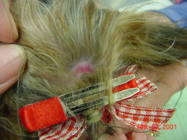Traction Alopecia Wikipedia