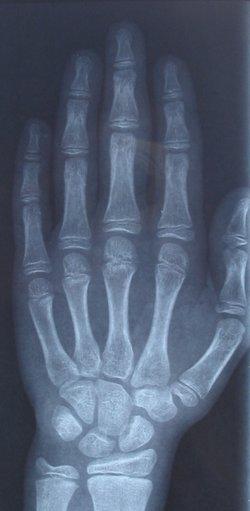 Image:X-ray boy hand.jpg