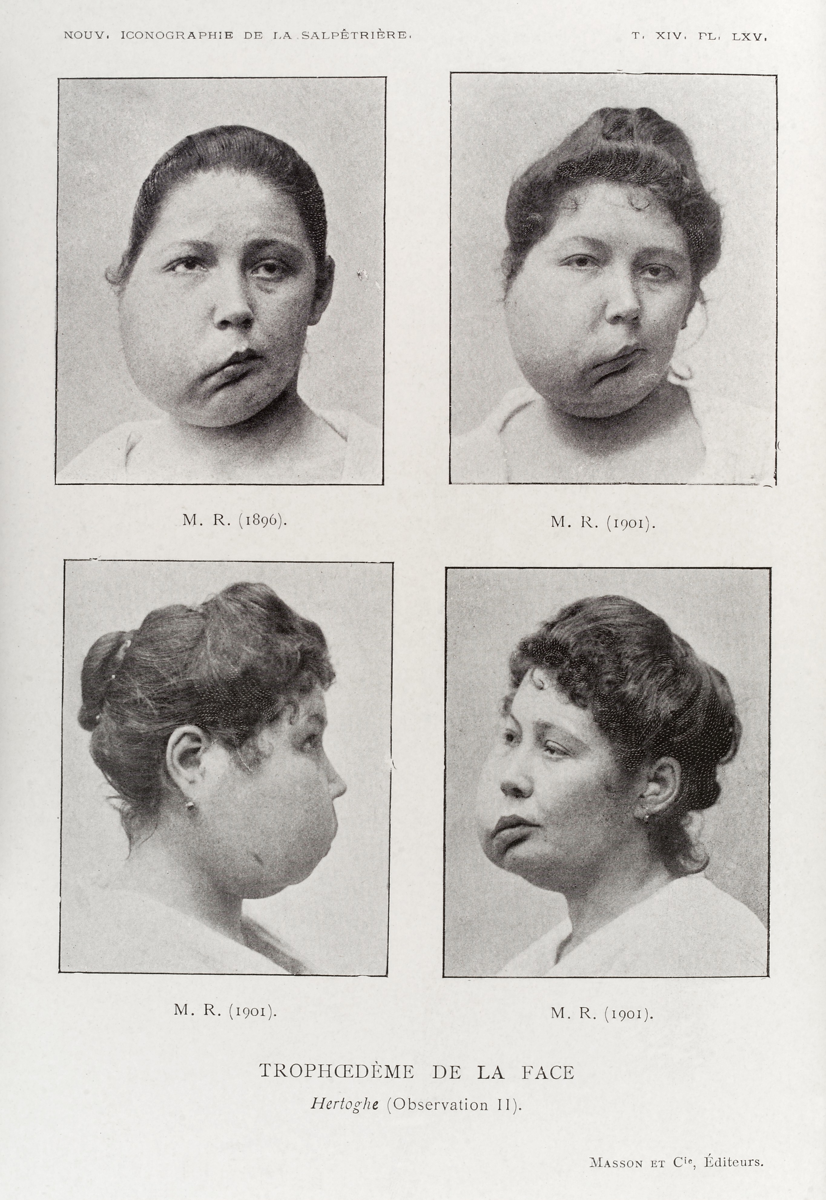 file a woman with a deformed and swollen face wellcome l0034946 jpg