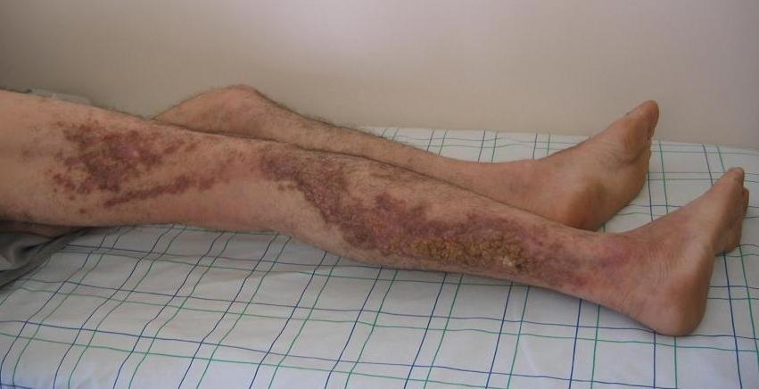 Darier's disease - Wikipedia