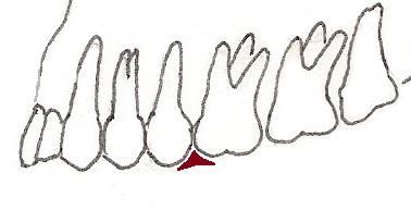Embrasure Dental on T V Diagram
