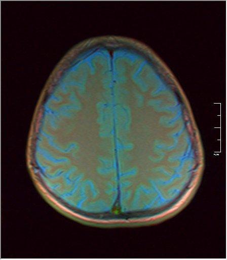 Brain MRI 0146 04.jpg