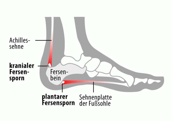 Fersensporn Anatomie