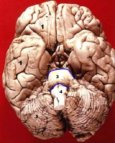 File:Human brain inferior view description.JPG