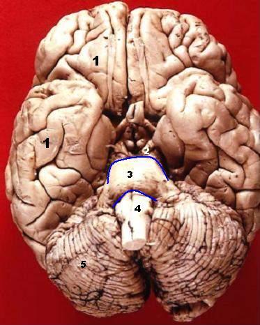File:Human brain inferior view description.JPG