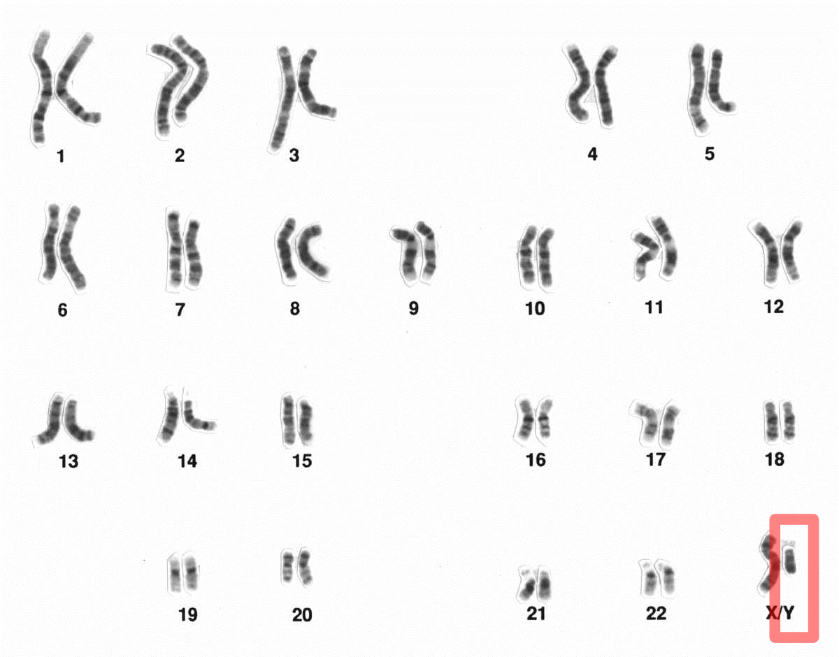 Y chromosome - Wikipedia X And Y Chromosomes