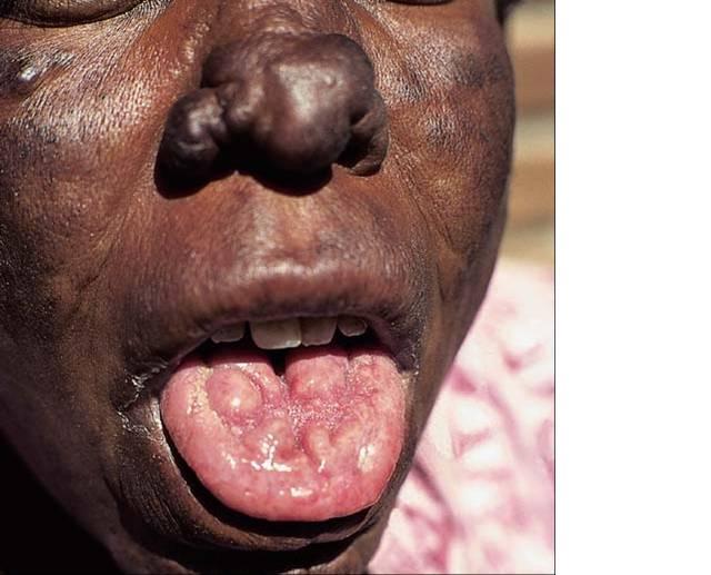 File:Leproma en... Lengua