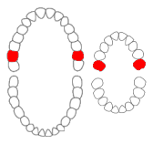 Maxillary second molars01-01-06.png