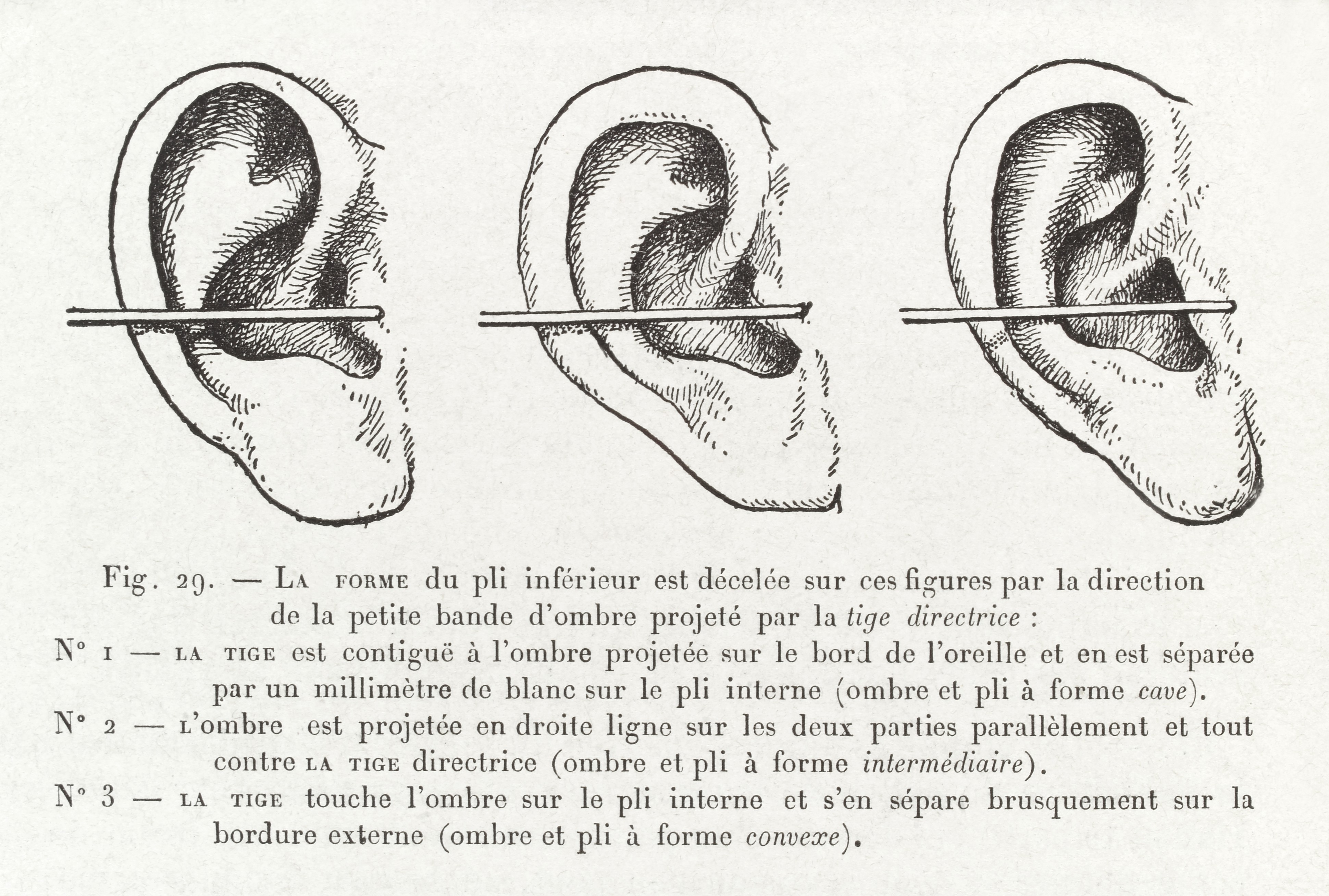 Measuring_the_ear_of_a_criminal_Wellcome_L0035102.jpg_3880x2616