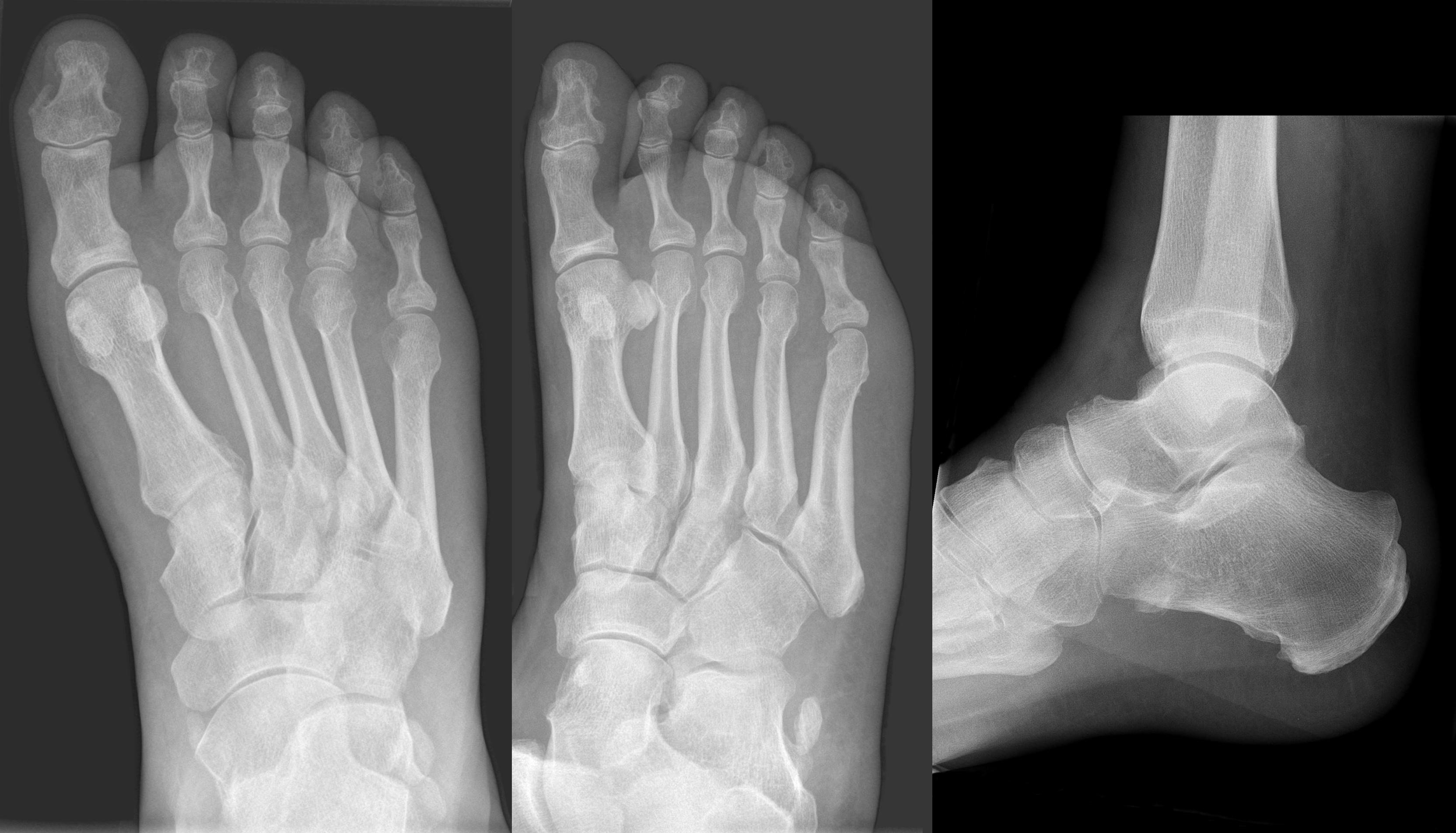 Initiales Röntgenbild