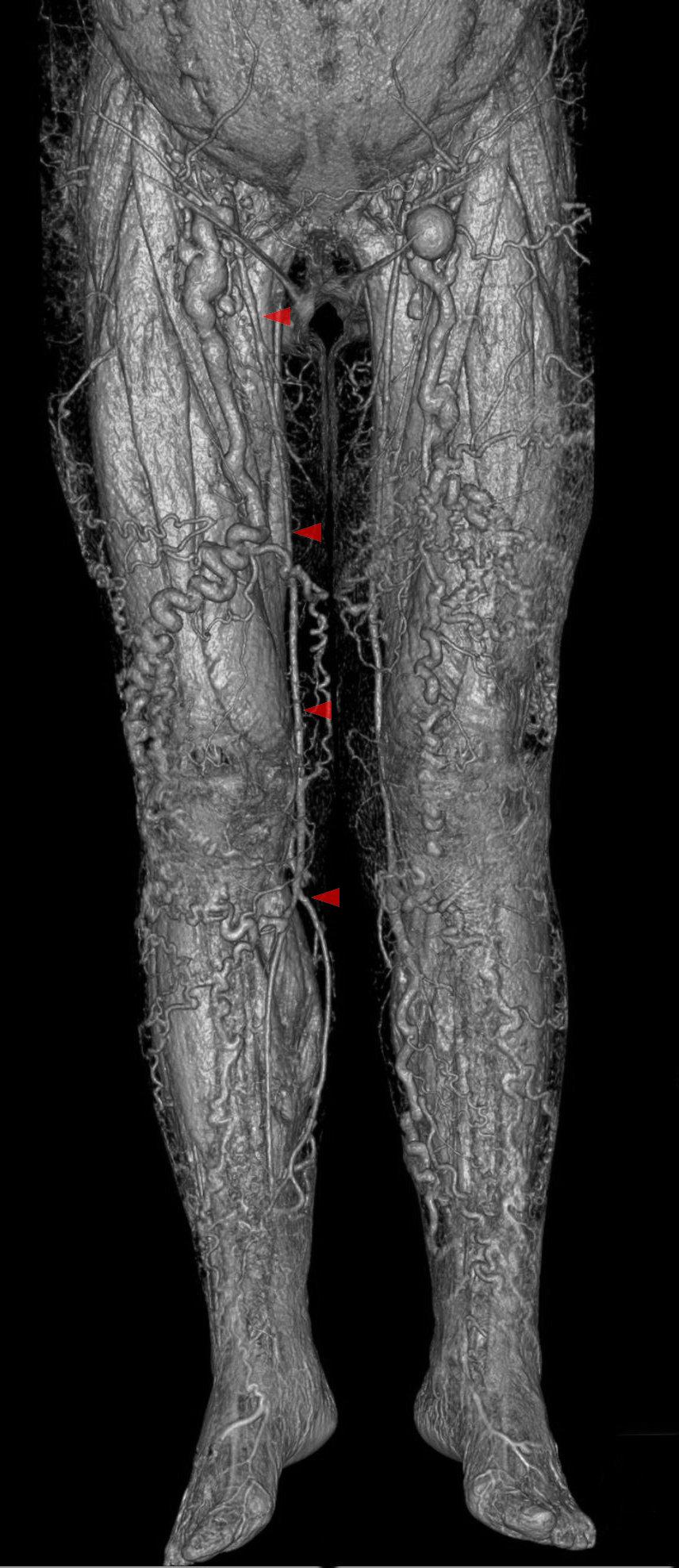 File:Seitenastvarikose - Vena saphena accessoria lateralis - CT ...