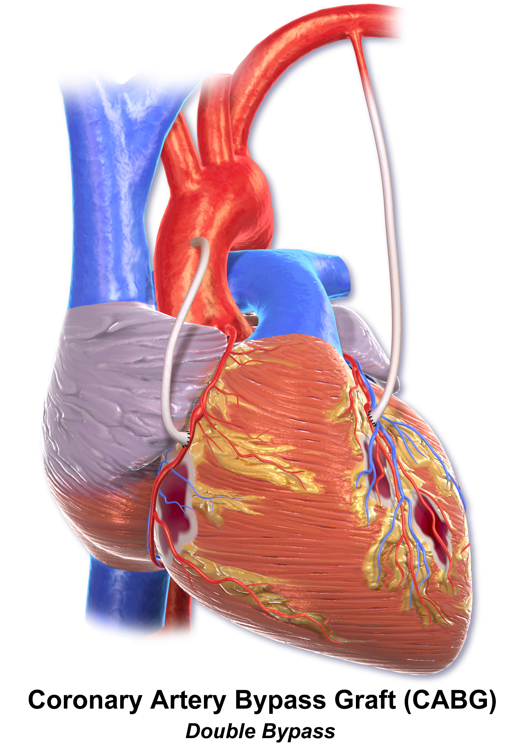 File:Blausen 0153 CABG...