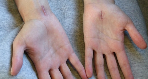 File:Carpal tunnel scars.jpg
