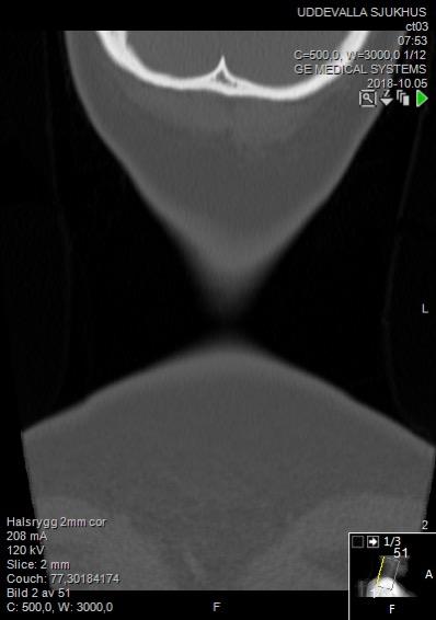 Computed tomographs of normal cervical vertebrae, coronal plane 2.jpg