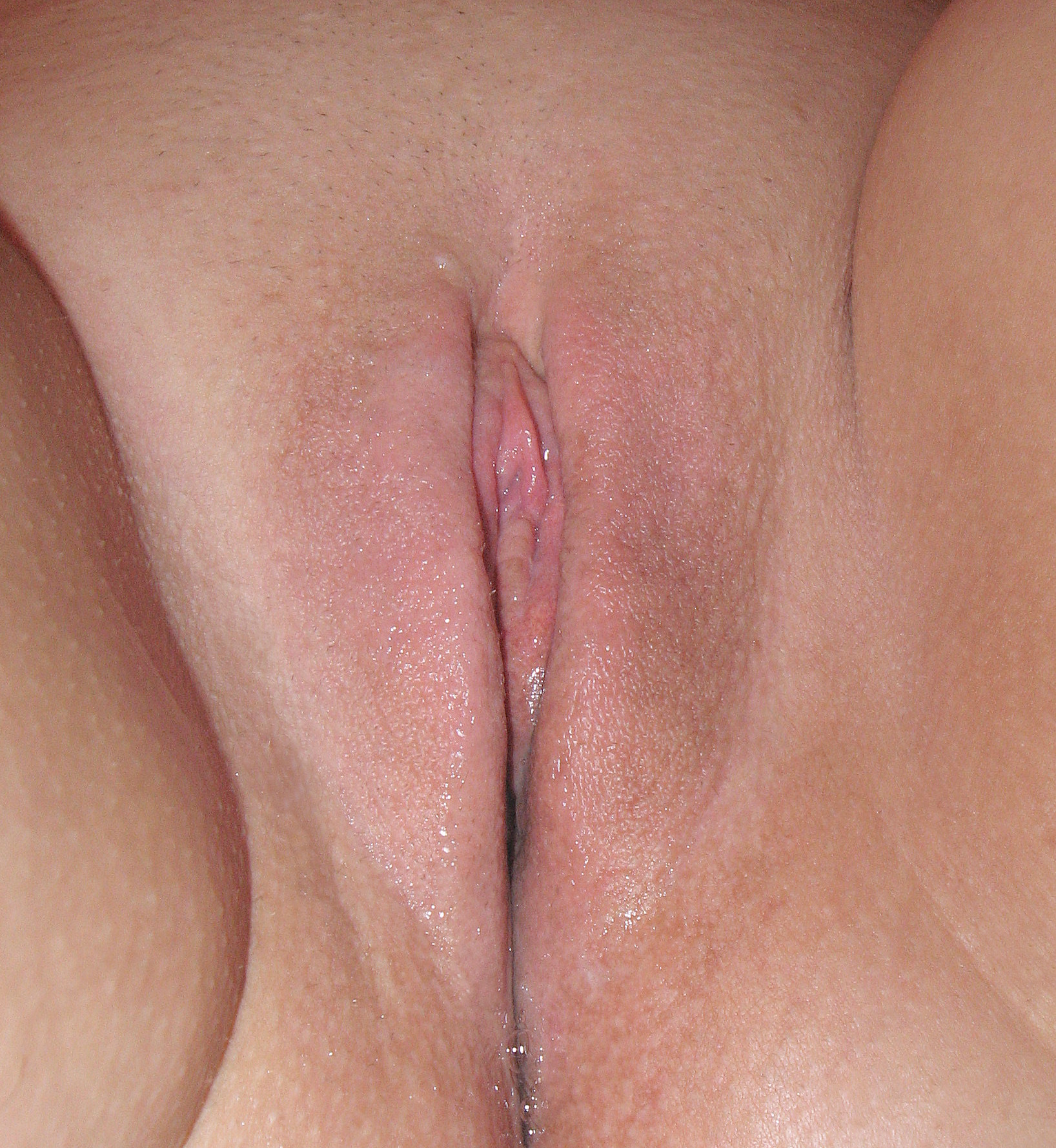 vulva photo female pubic examine