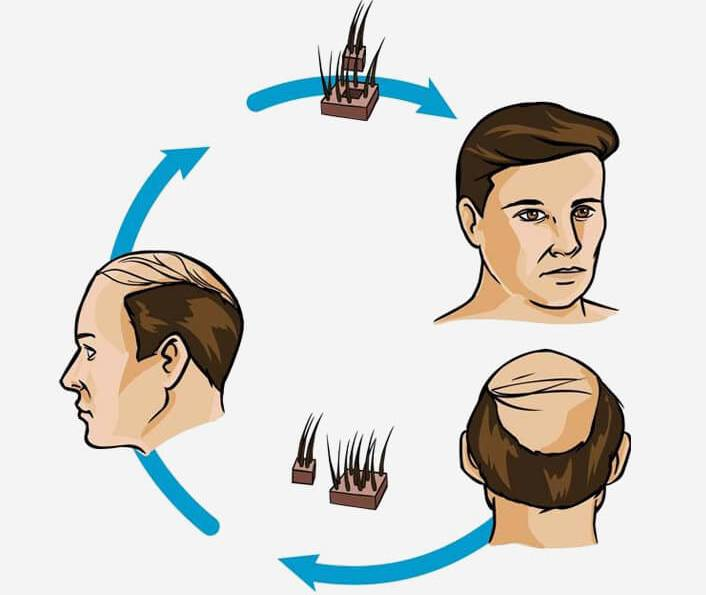 hair transplant in london