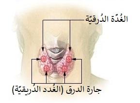 التهاب الغدة الدرقية ويكيبيديا