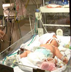 Incubator baby