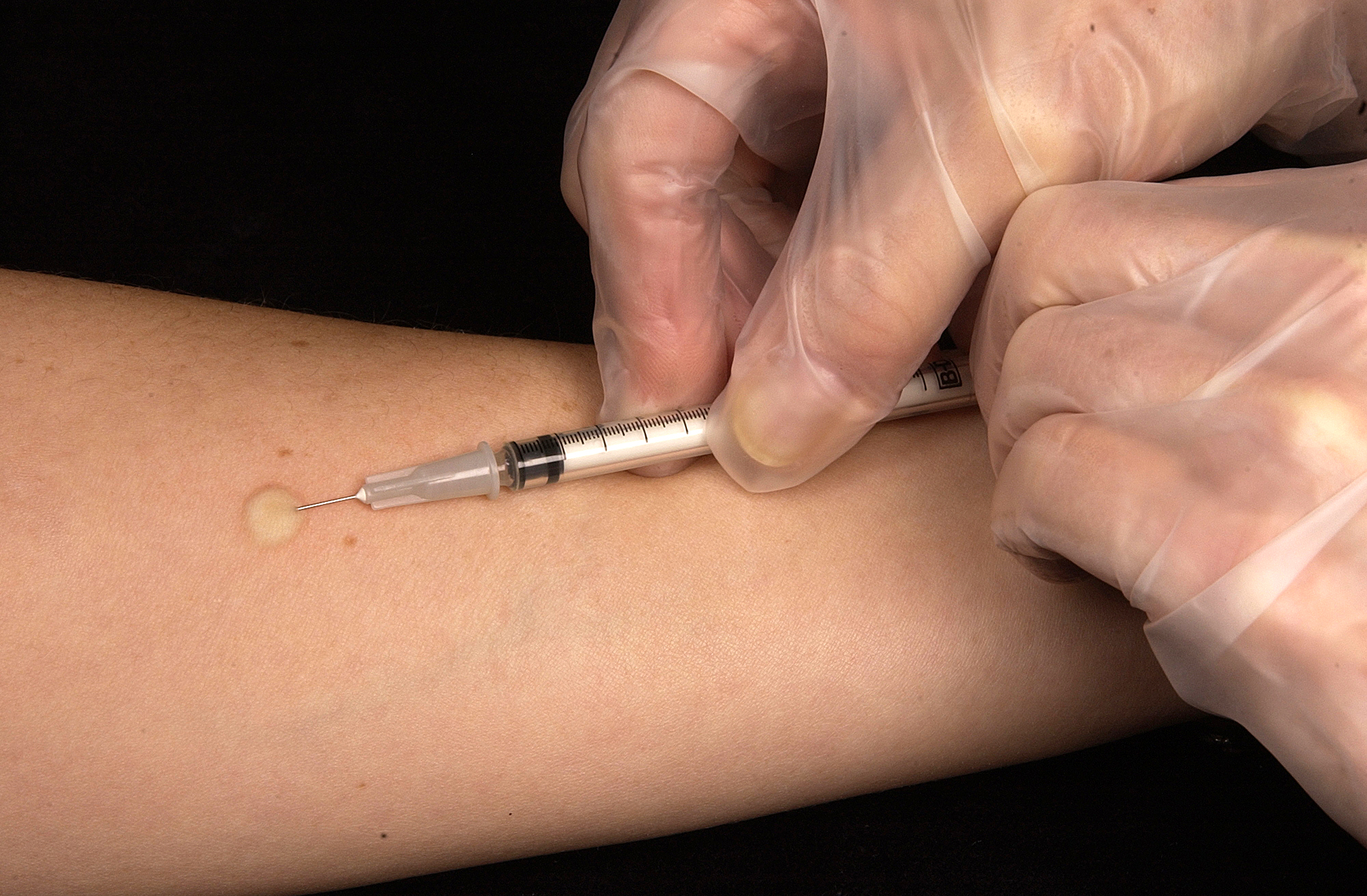 File:Mantoux tuberculin skin test.jpg