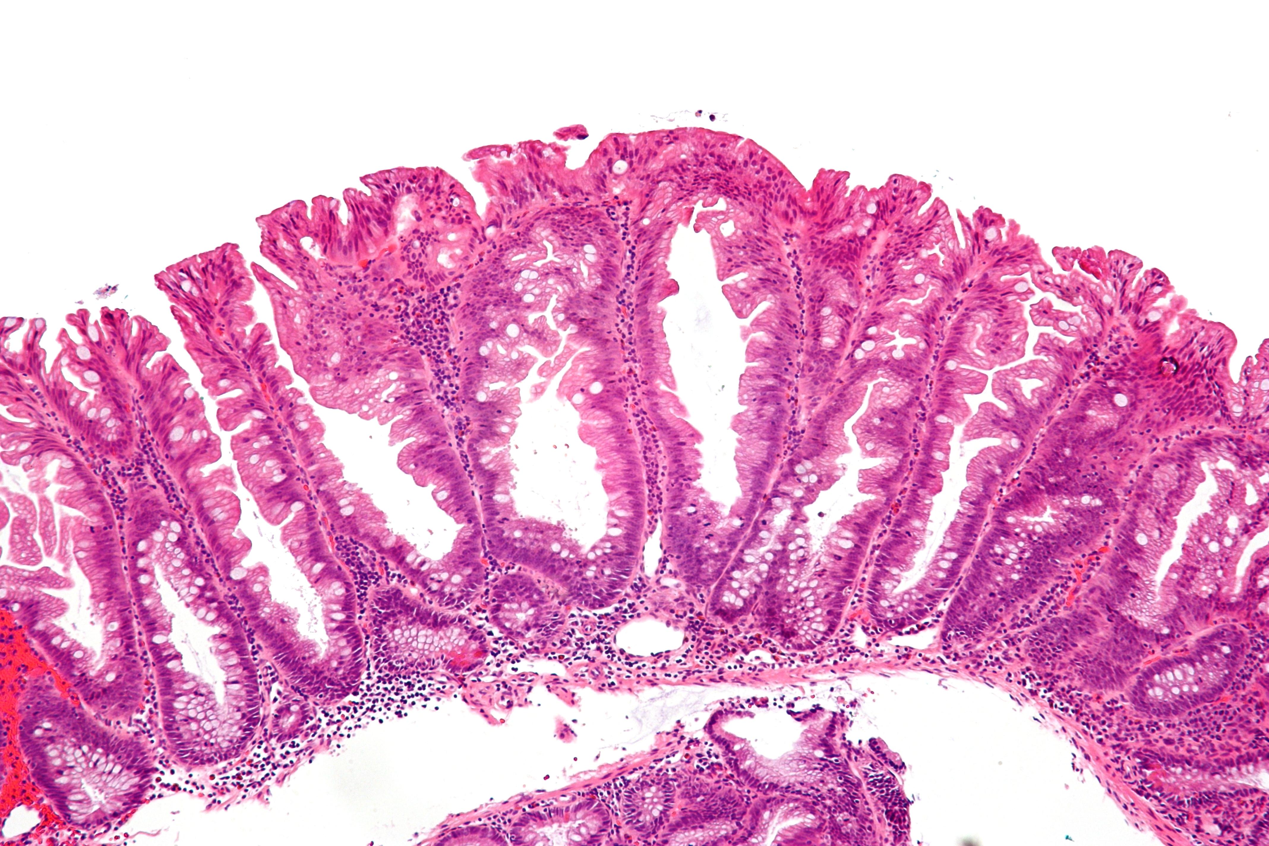 File:Sessile serrated adenoma 2 intermed mag.jpg ...