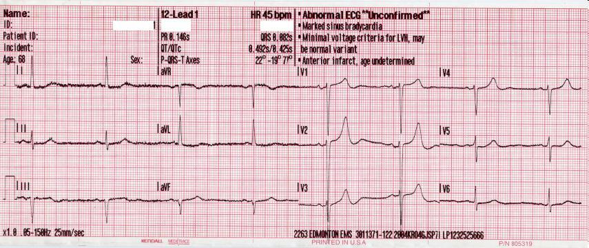 EKG Bradykardie - 45bpm