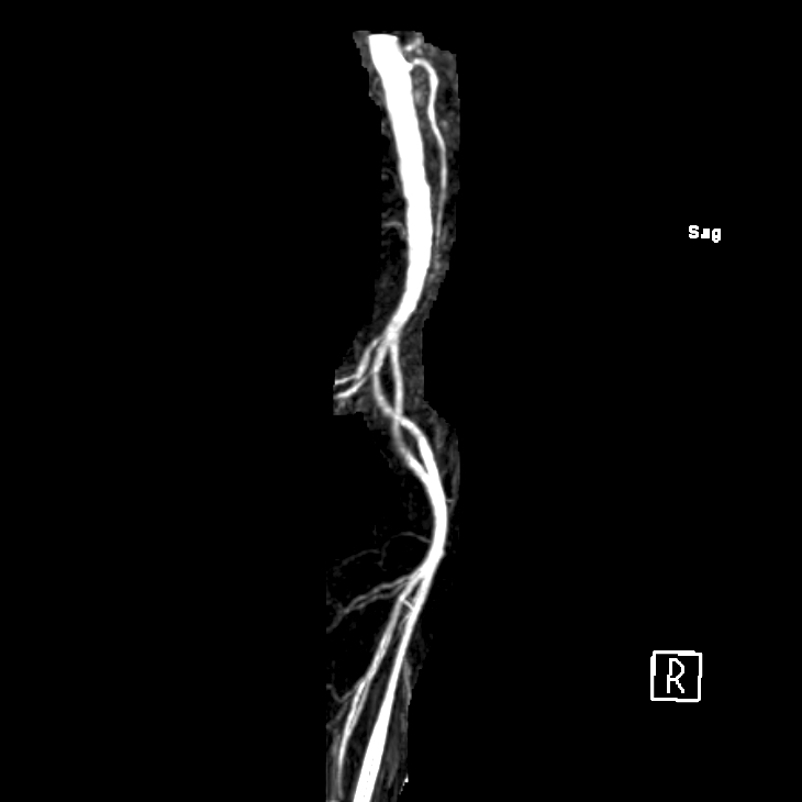 artery of Adamkiewicz branching