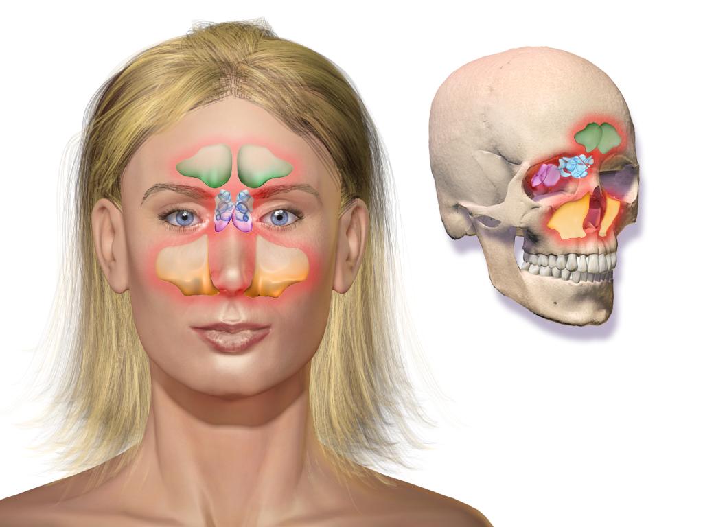 depicting sinusitis