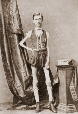 Isaac W Sprague, living skeleton, 1867