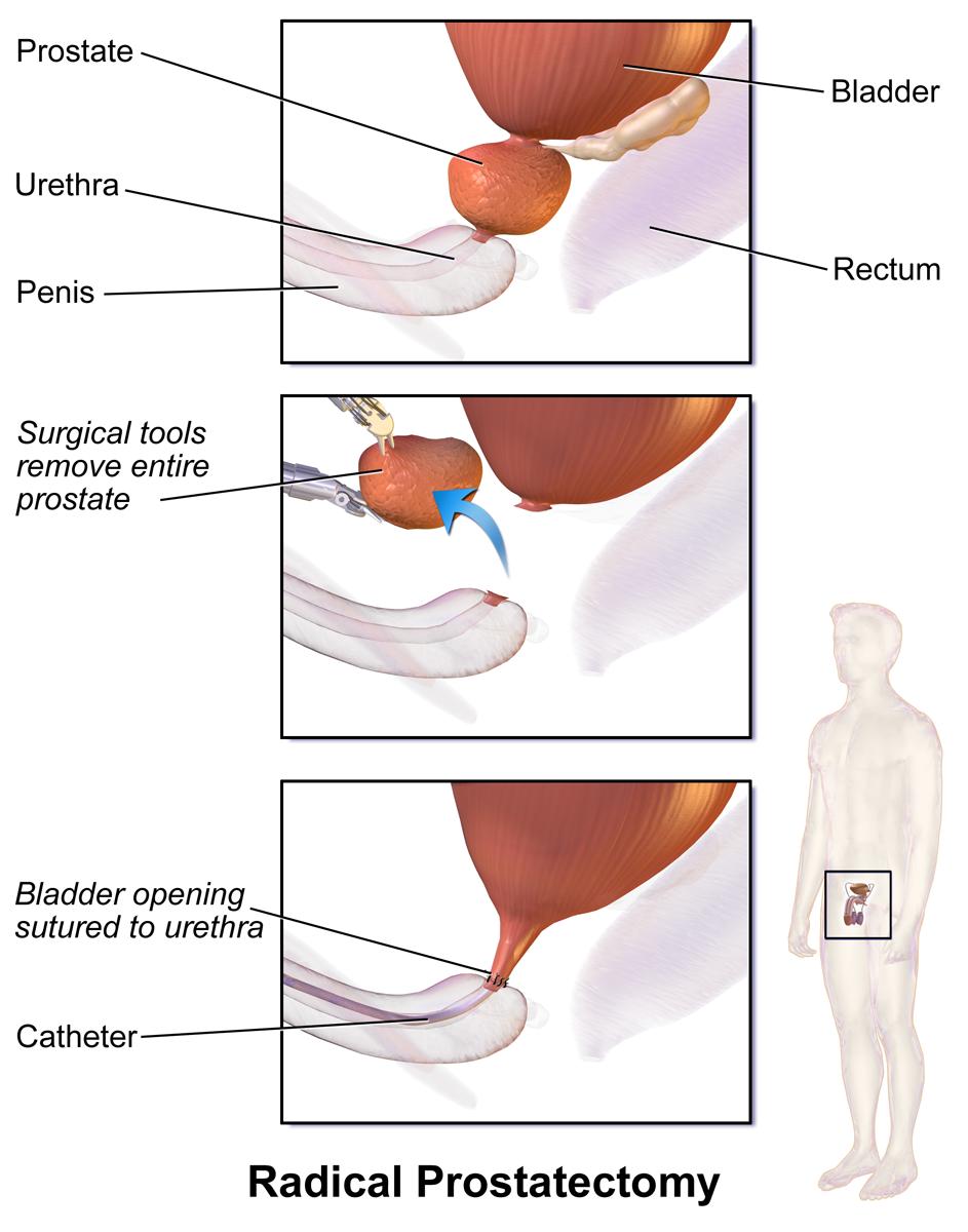 Prostatectomie Wikip 233 Dia