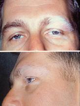 Sindrome di Vogt-Koyanagi-Harada - Wikipedia 6e42452abd7c