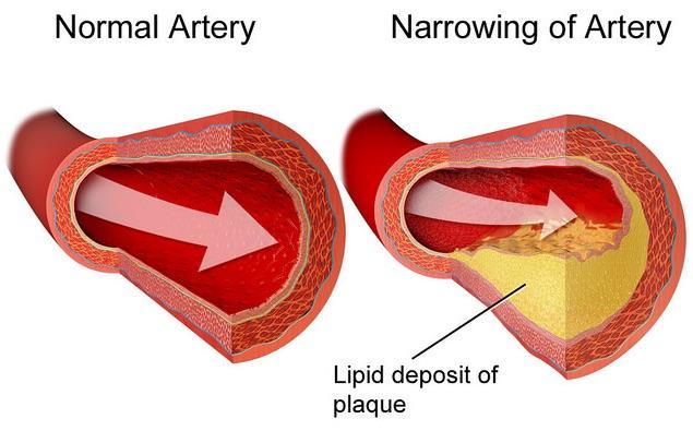File:Atherosclerosis.jpg