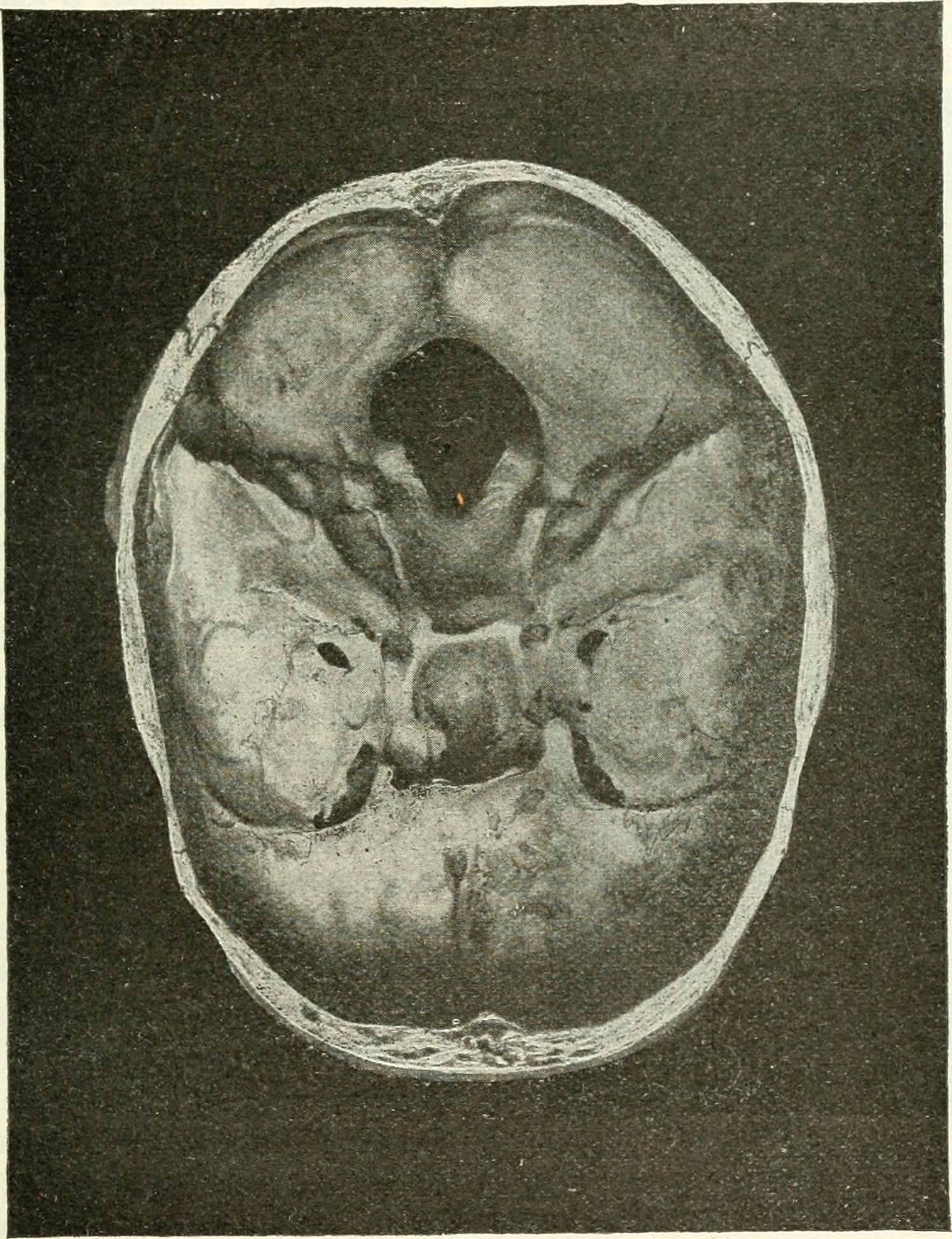 Filebase Of The Cranium For A Male Acromegaly Patient 1904g