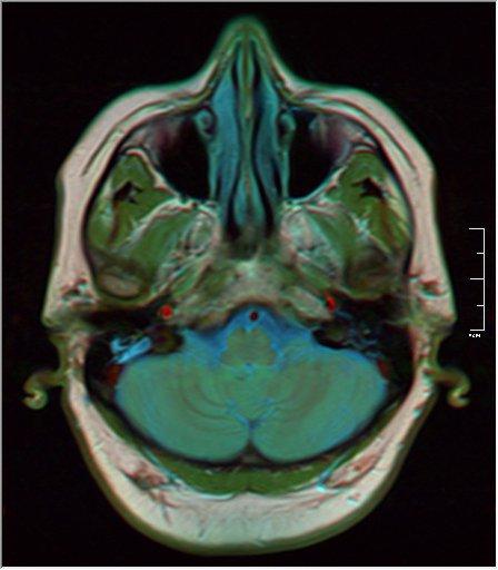 Brain MRI 0106 16.jpg