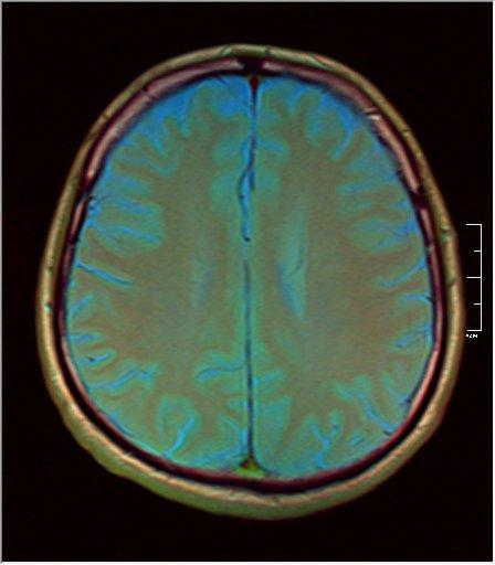 Brain MRI 0211 06.jpg