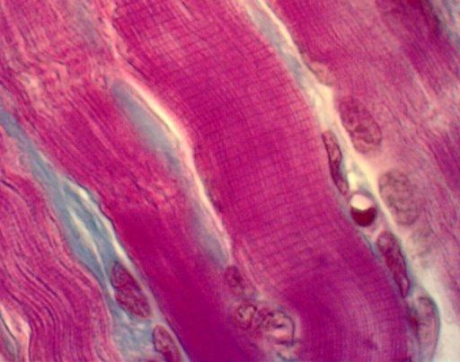 Músculo estriado - Wikipedia, la enciclopedia libre