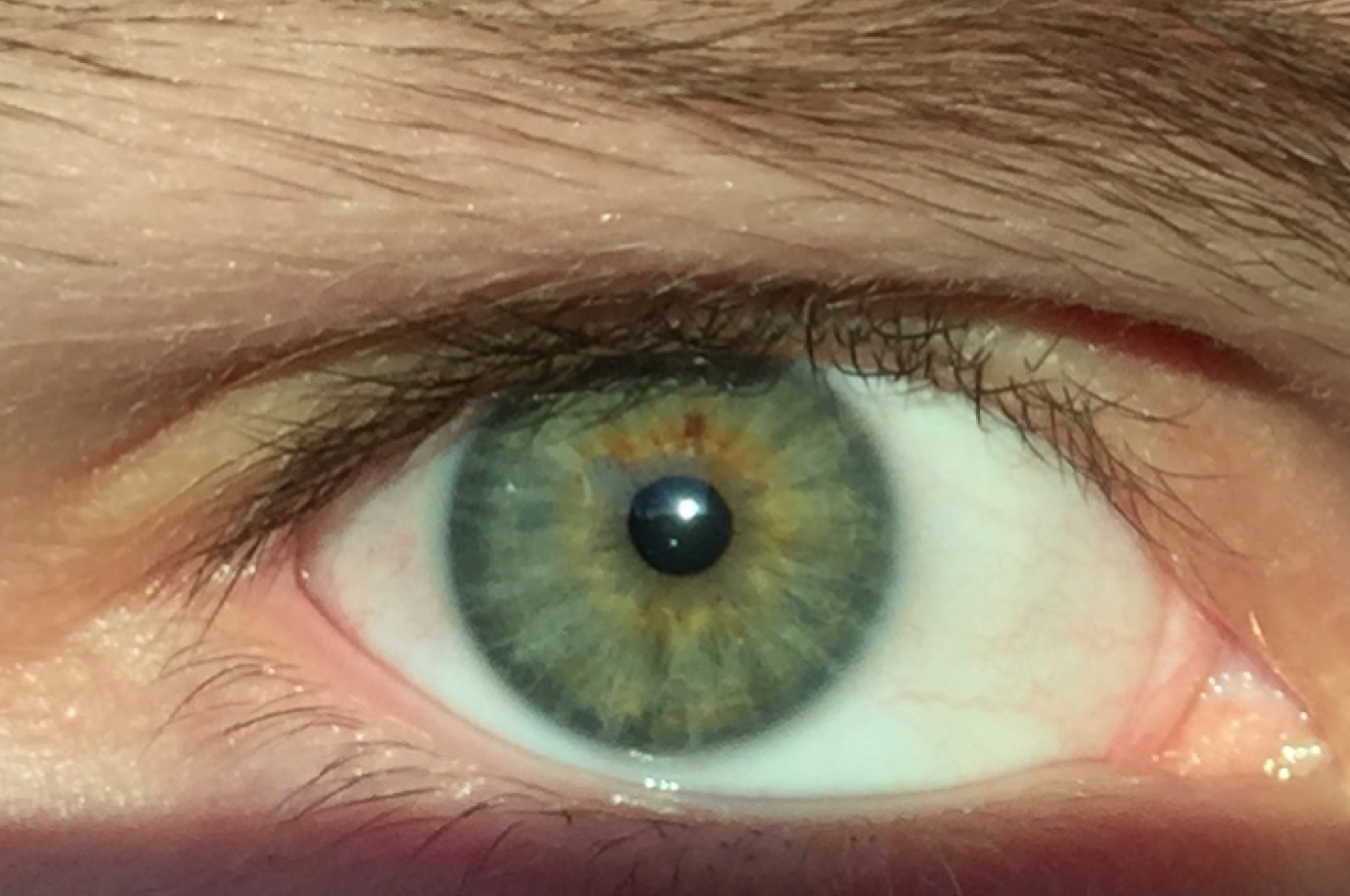 List of synonyms and antonyms of the word human eye color evolution of eye color in humans nvjuhfo Choice Image