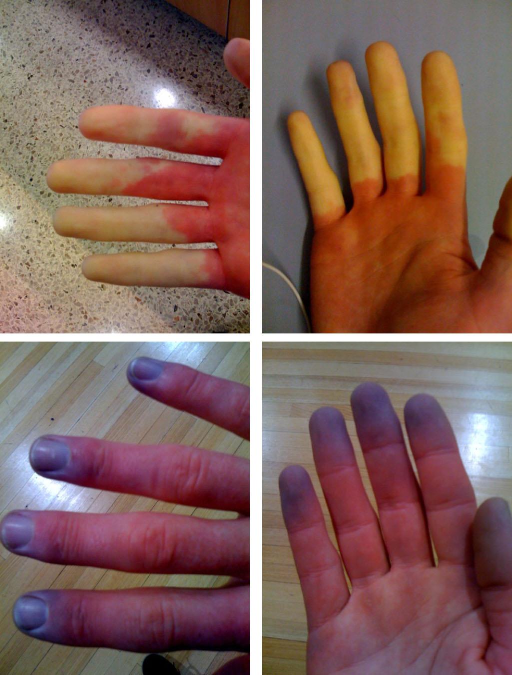 blodpropp i fingret behandling