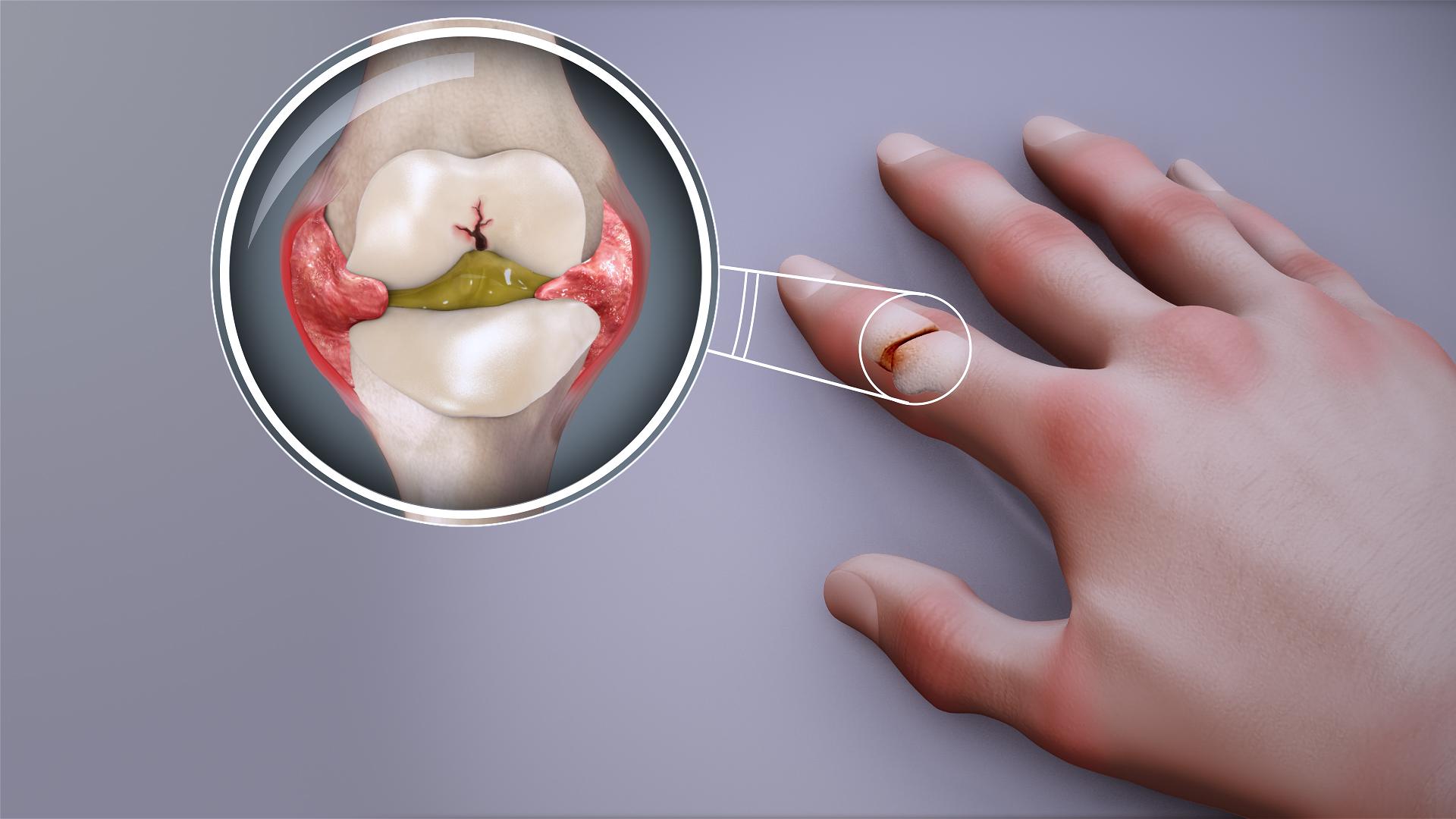 file rheumatoid arthritis swollen finger joint jpg wikimedia commons