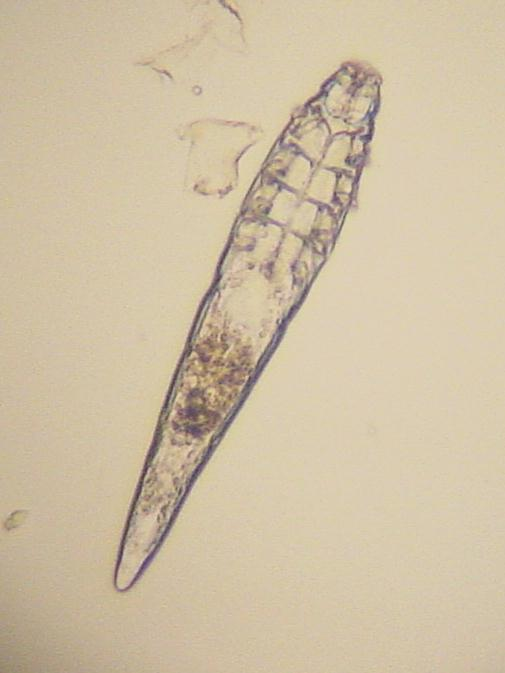 demodex mites human